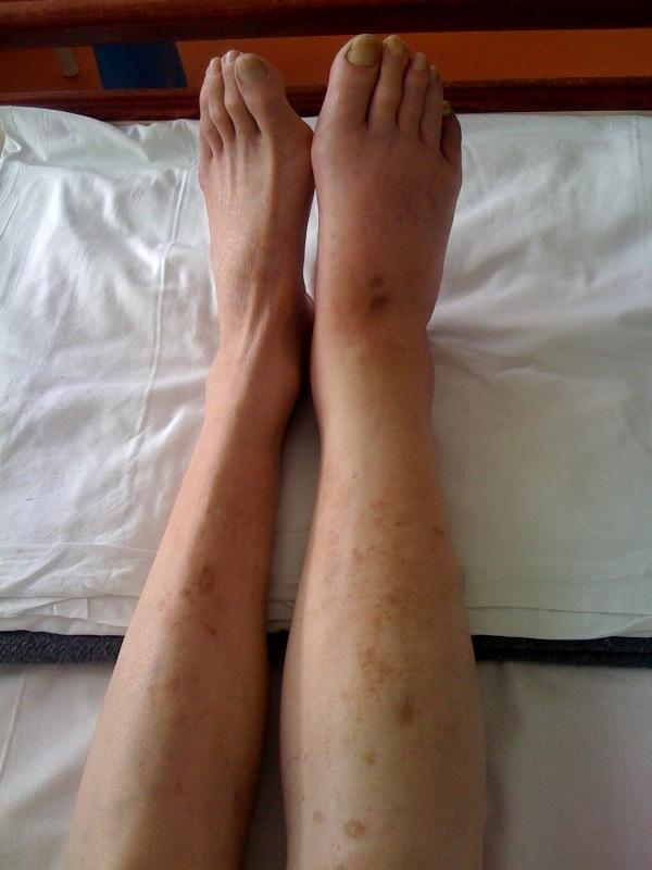cum de a pierde picioarele în greutate cu varicoză